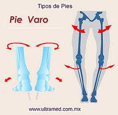 2. Pie Varo