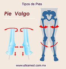3. Pie Valgo